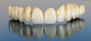 bigstock-porcelain-teeth-dental-bridg-488788221-1024x471